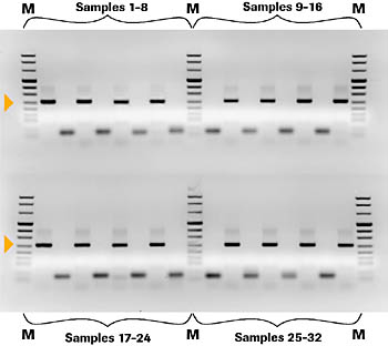 MagNA Pure LC nucleic acid isolates were analyzed on the LightCycler Instrument