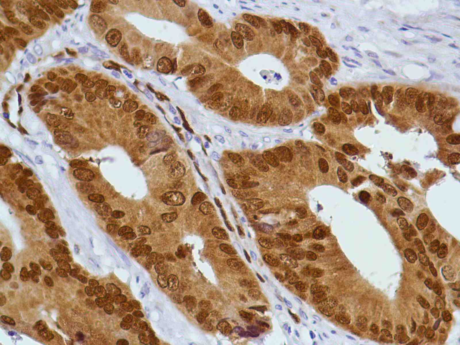 Human Colon Carcinoma stained with anti-CDX2 antibody