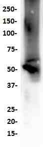 Western Blot analysis of HepG-2 cell lysate with anti-ALDH1A1(SP296) antibody.