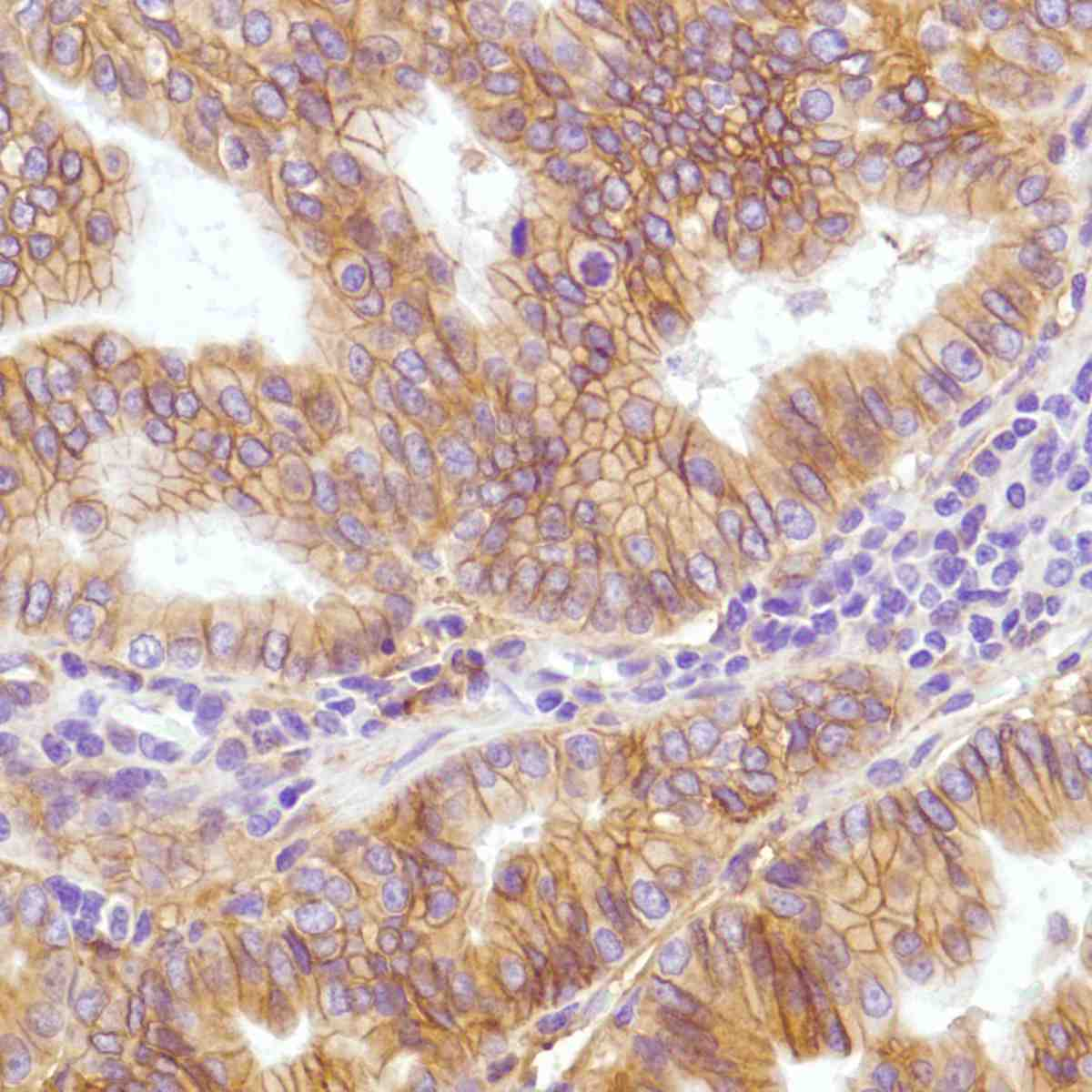 Human Stomach Adenocarcinoma stained with anti-B7-H3 antibody