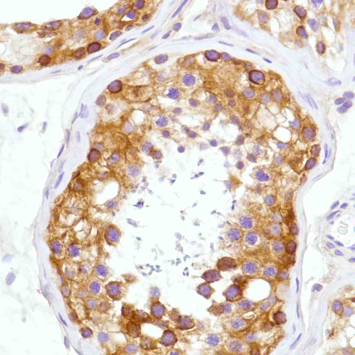 Human Testis stained with anti-B7-H3 antibody