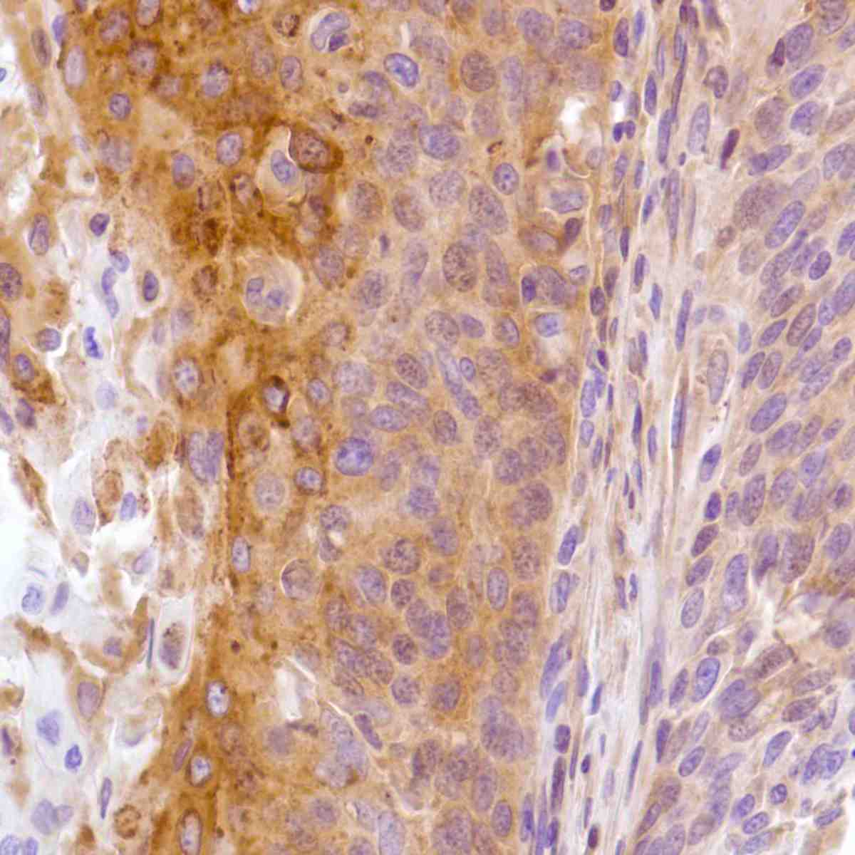 Human Cervical Squamous Cell Carcinoma stained with anti-C4.4a antibody