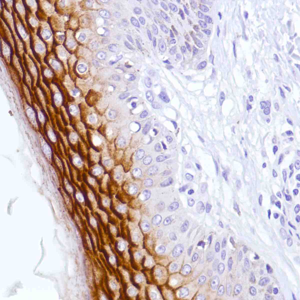 Human Skin stained with anti-C4.4A antibody