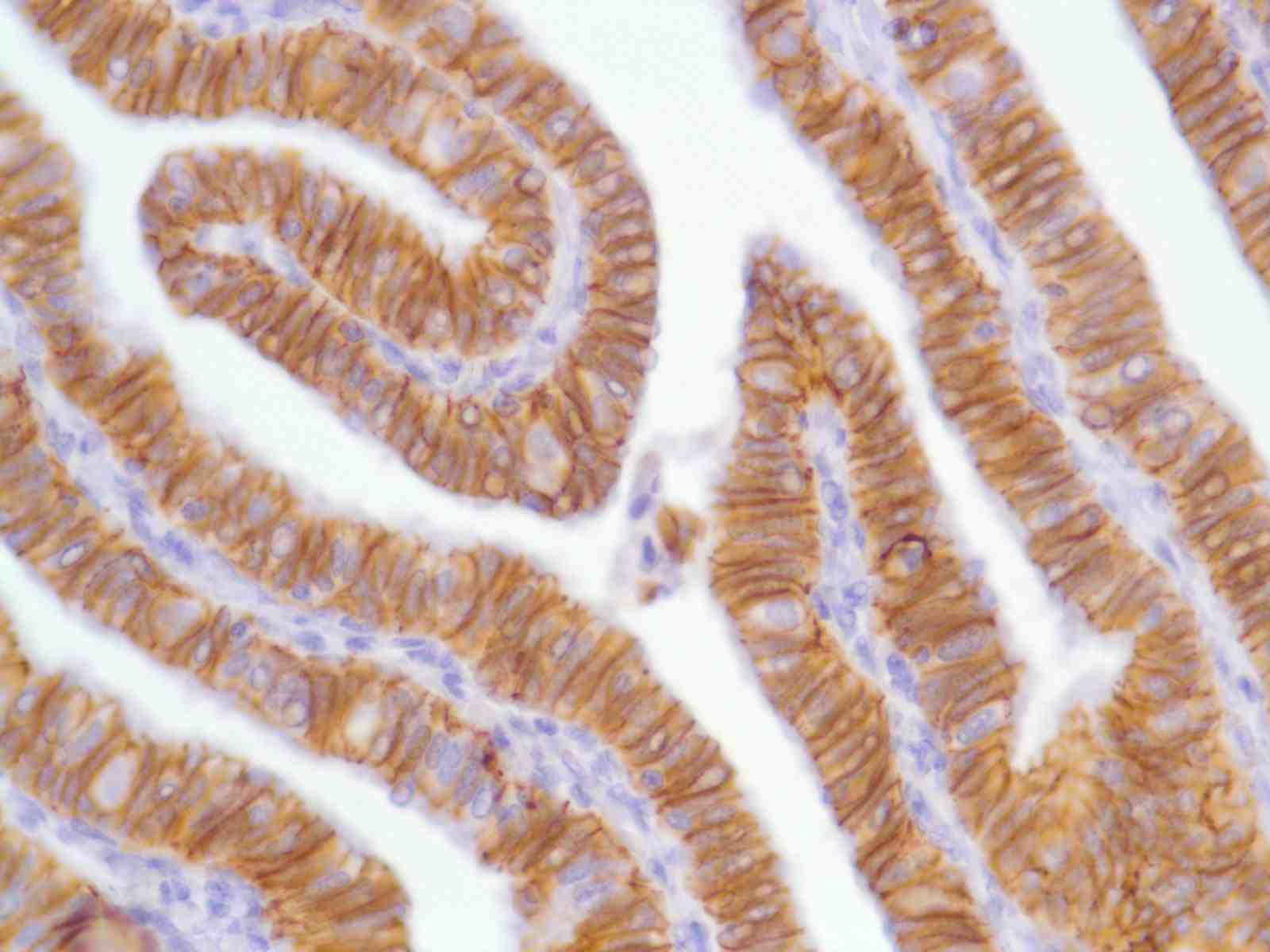 Human Fallopian Tubes stained with anti-N-Cadherin antibody