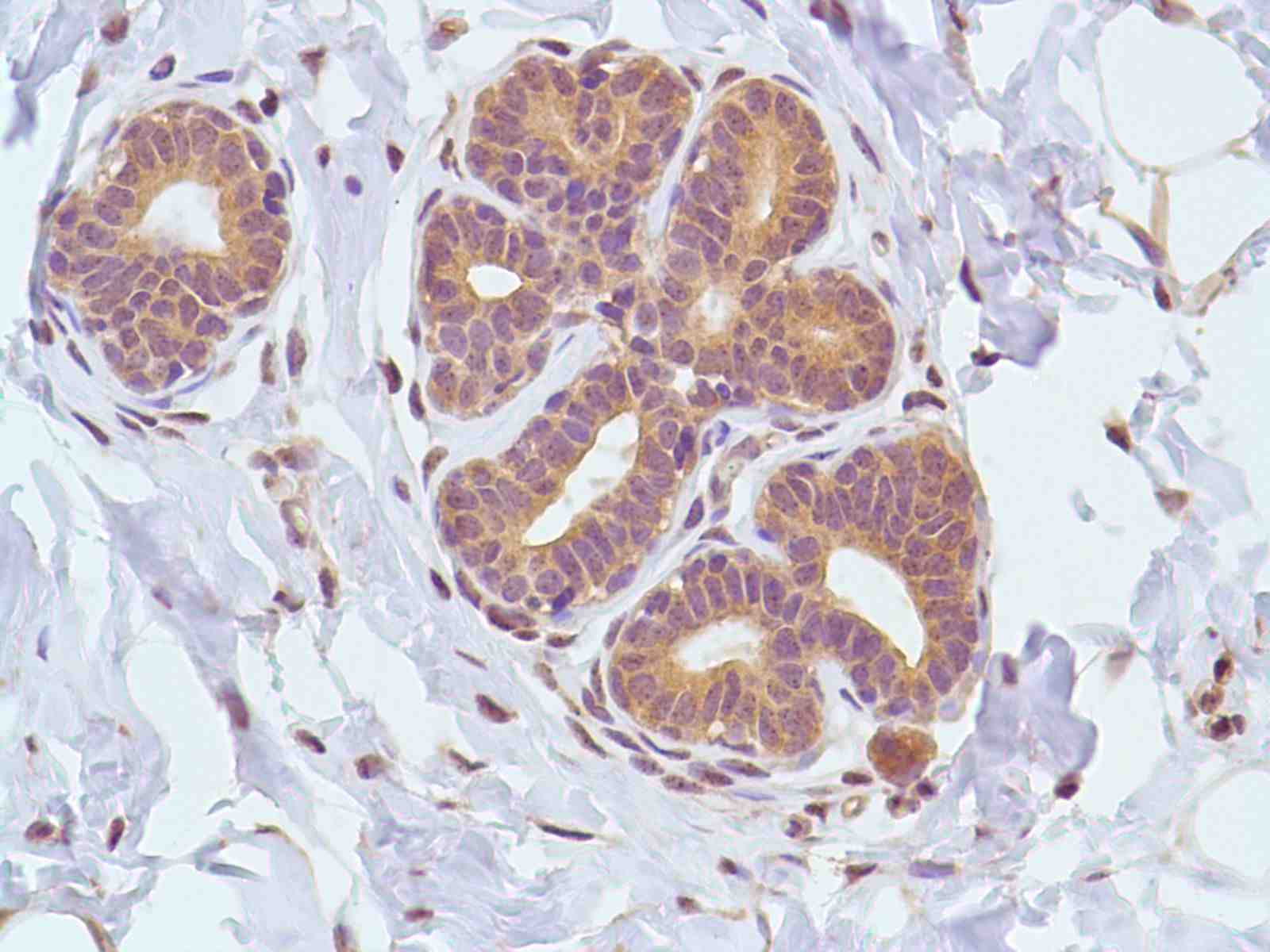 Human Breast stained with anti-Calpain antibody