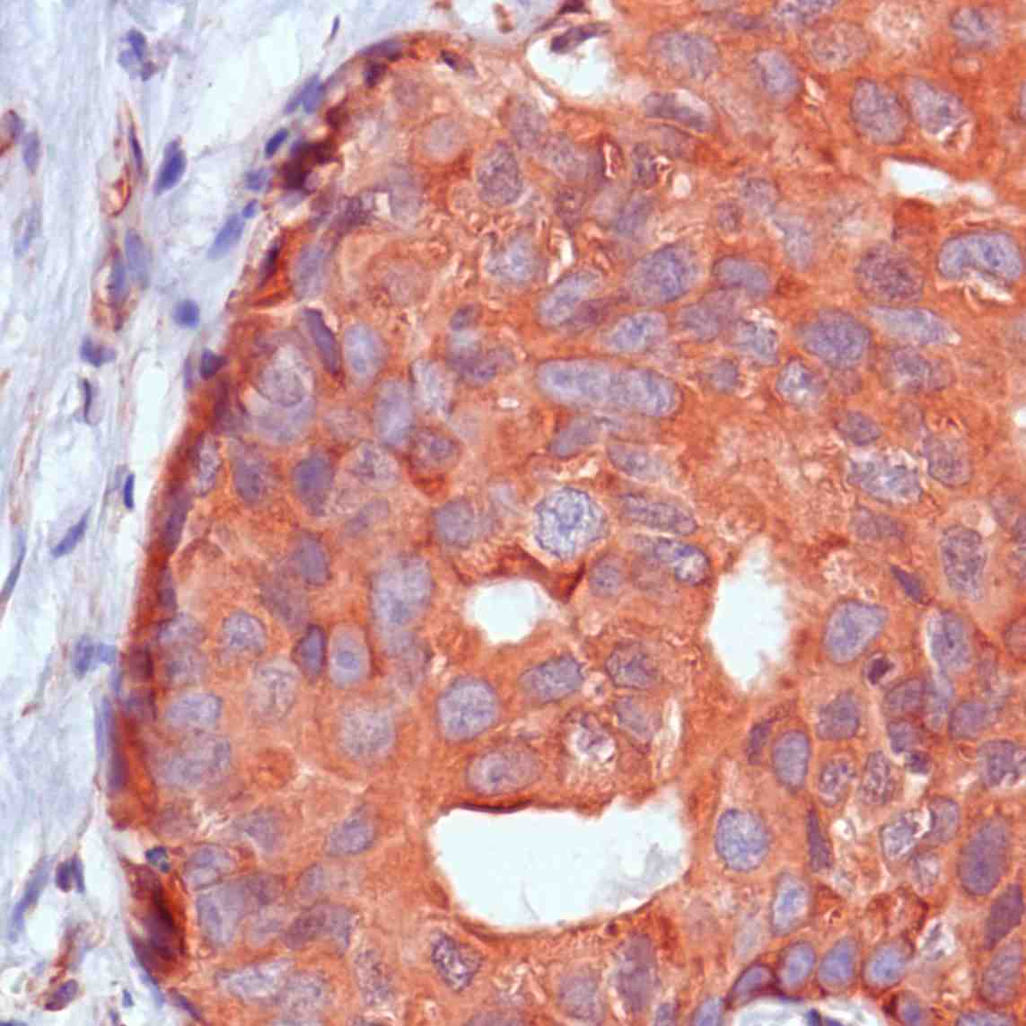 Human Breast Carcinoma stained with anti-Calpastatin antibody
