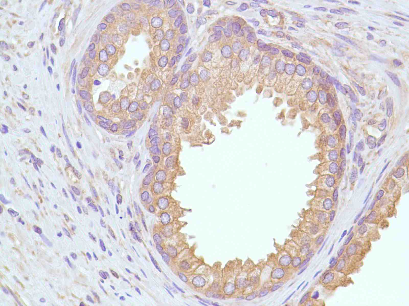 Human Prostate stained with anti-Calpastatin antibody