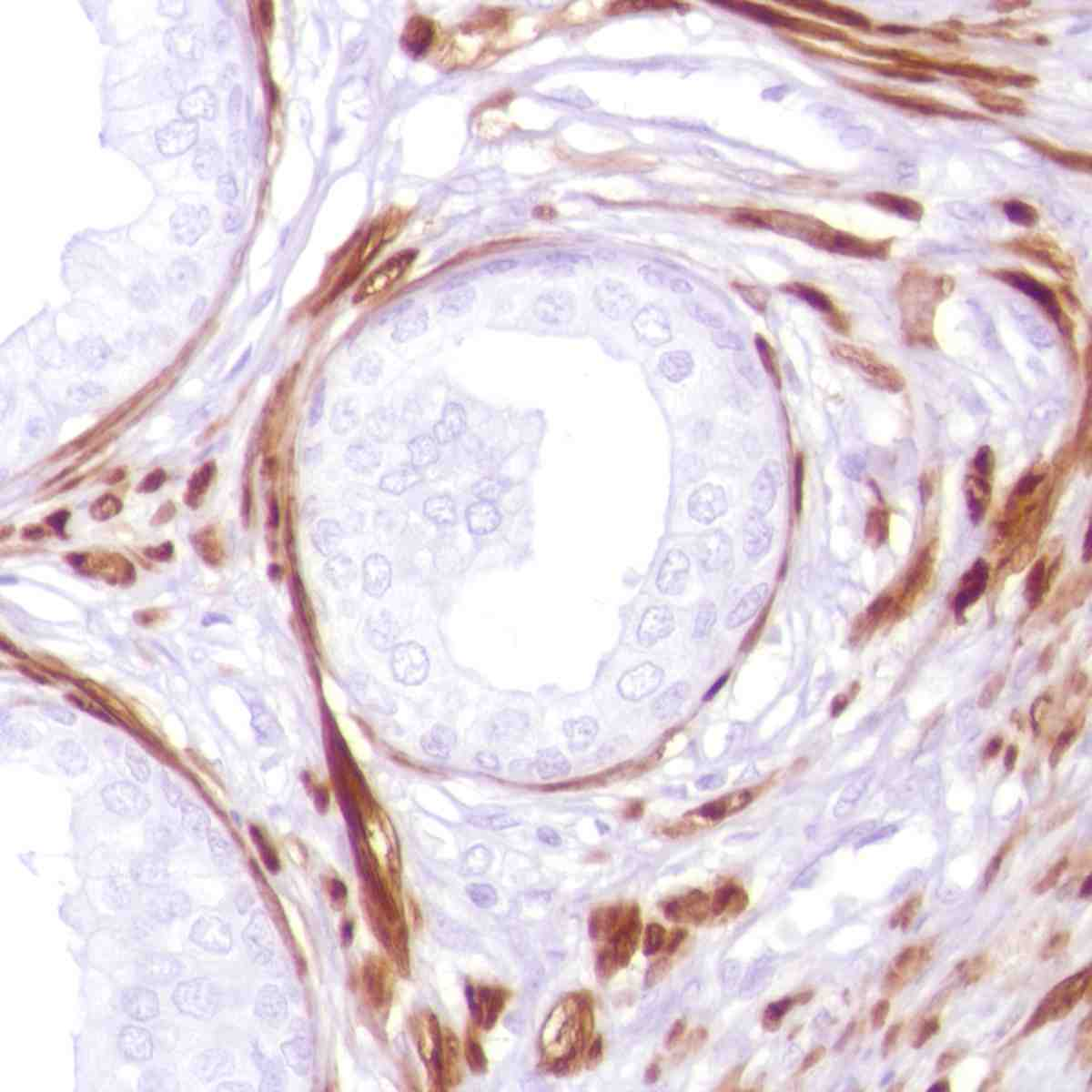Human Prostate stained with anti-Calponin-1 antibody