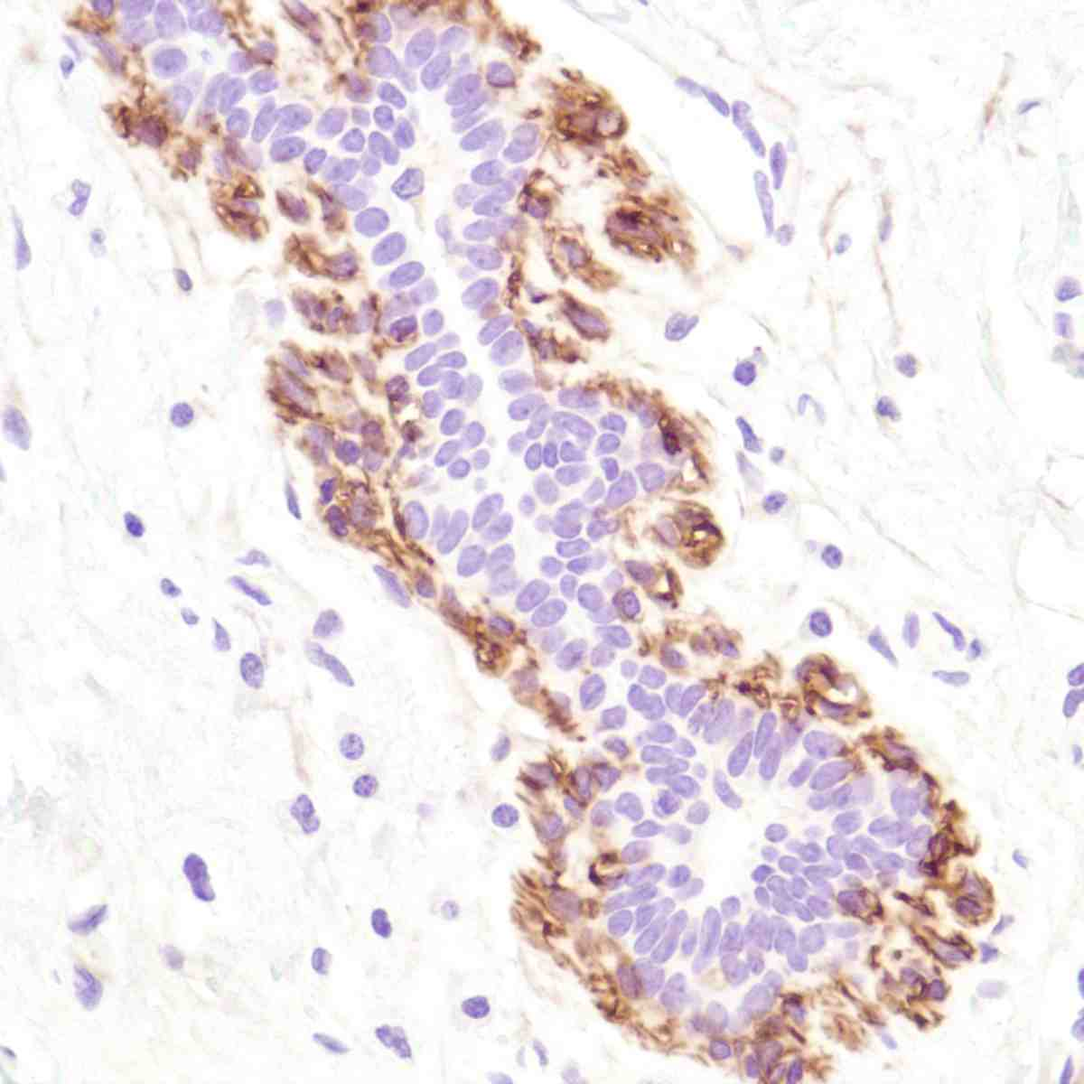 Human Breast stained with anti-CD10 antibody