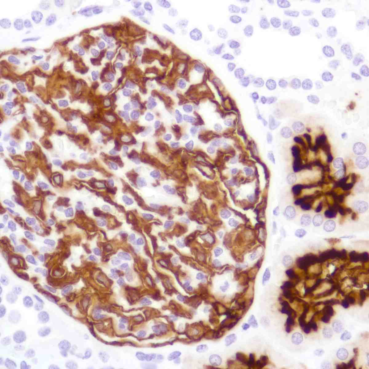 Human Kidney stained with anti-CD10 antibody