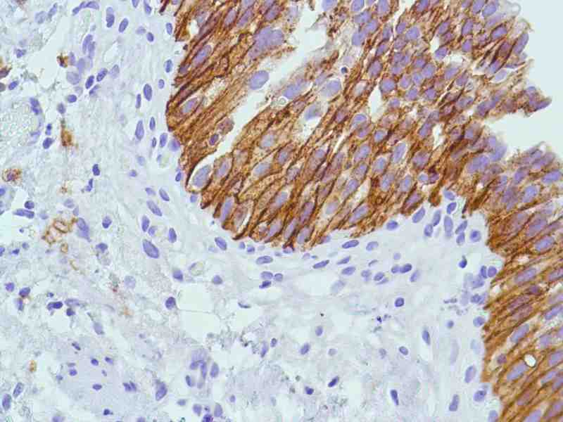 Human Bladder stained with anti-CD138 antibody