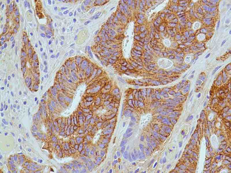 Human Colon Adenocarcinoma stained with anti-CD138 antibody