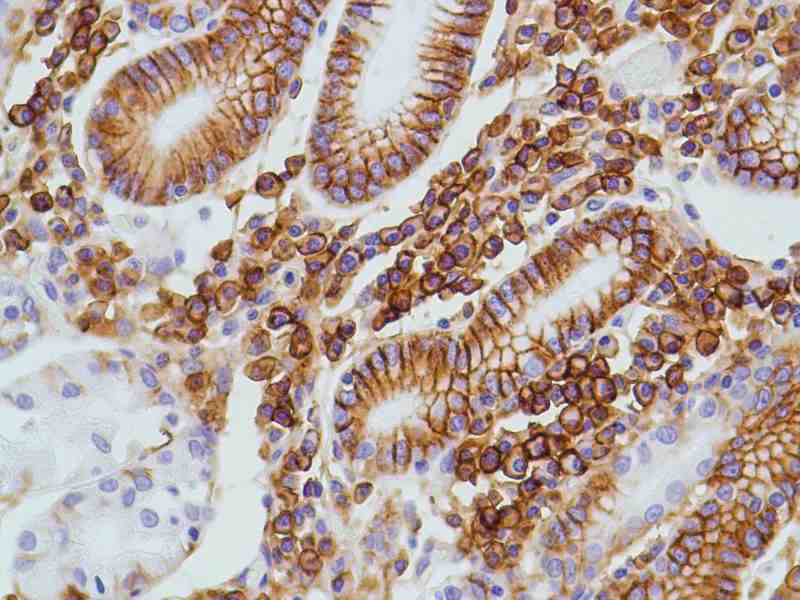 Human Colon stained with anti-CD138 antibody