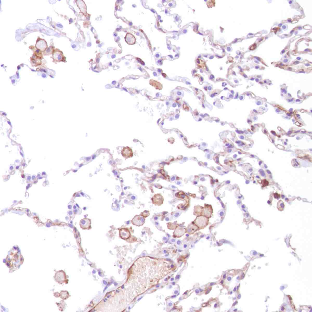 Human Lung stained with anti-CD14 antibody