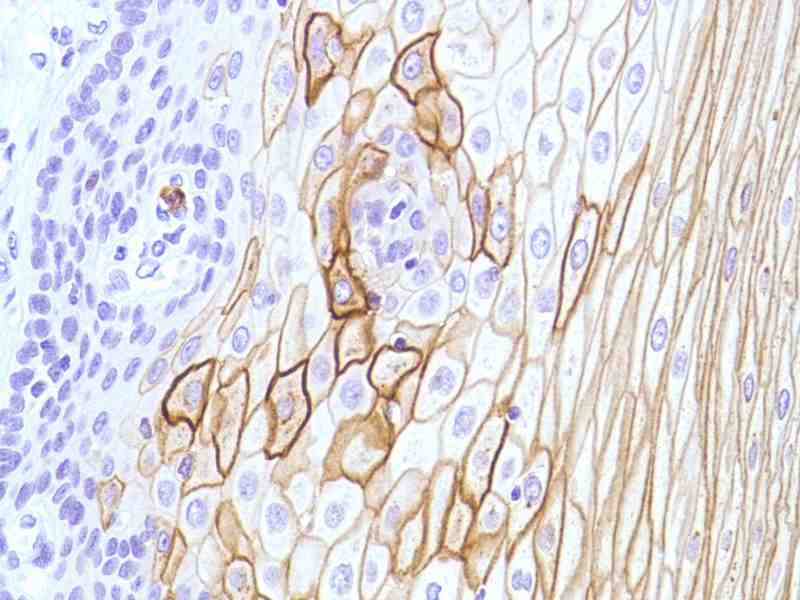 Human Esophagus stained with anti-CD15 antibody