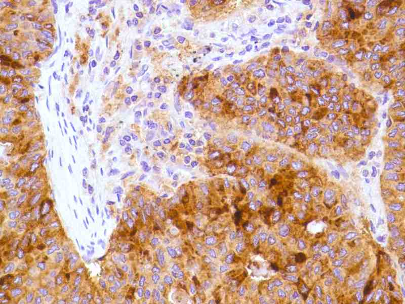 Human Lung Adenocarcinoma stained with anti-CD15 antibody