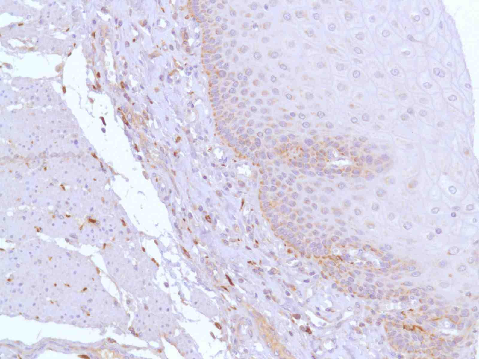 Human Esophagus stained with anti-CD163 antibody