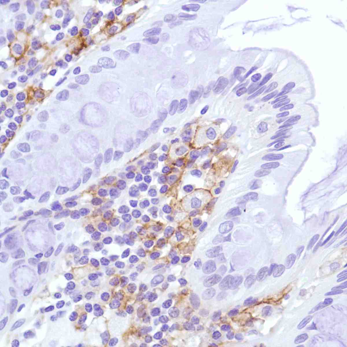 Human Colon stained with anti-CD169 antibody