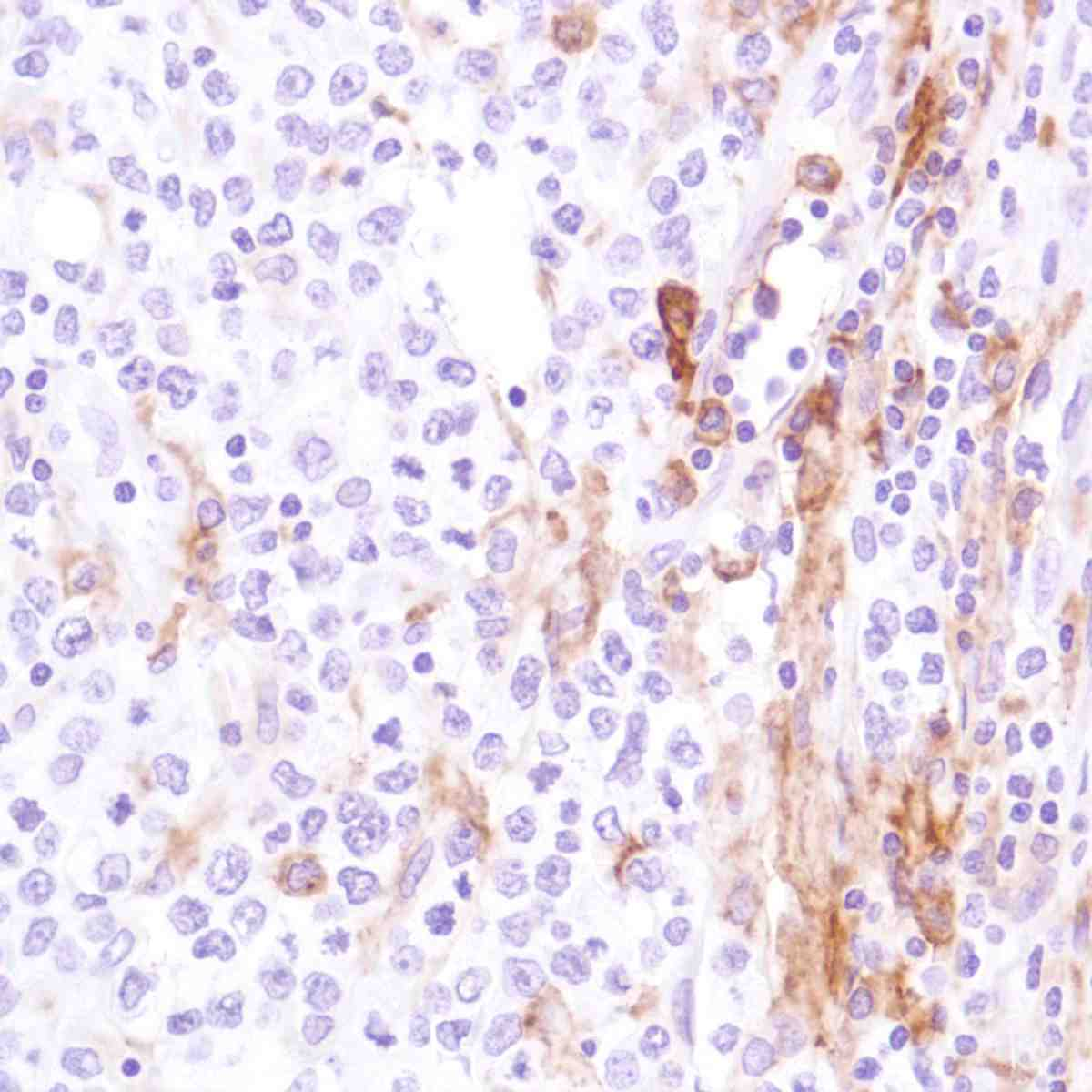 Human B-Cell Lymphoma stained with anti-CD16a antibody