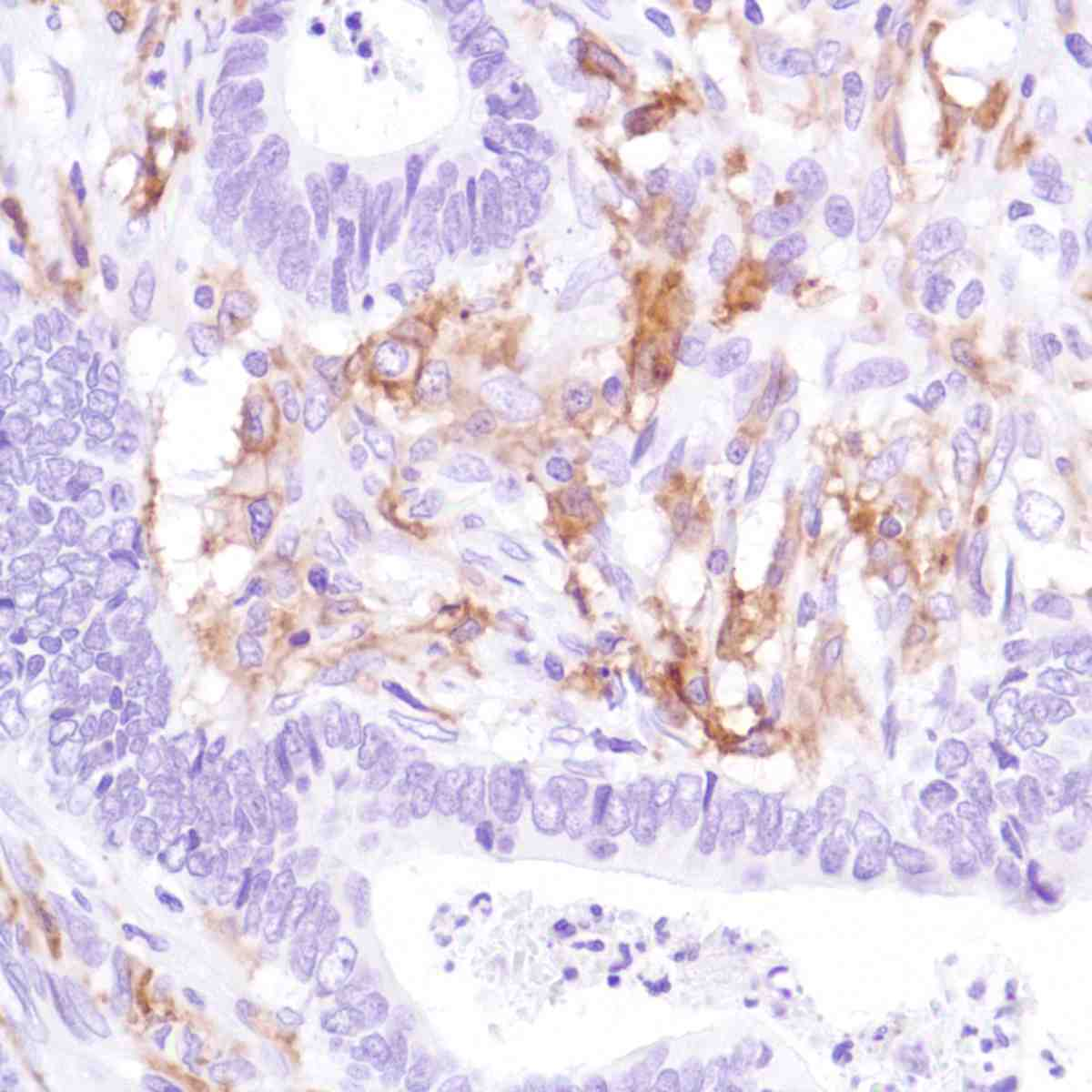 Human Colon Adenocarcinoma stained with anti-CD16a antibody