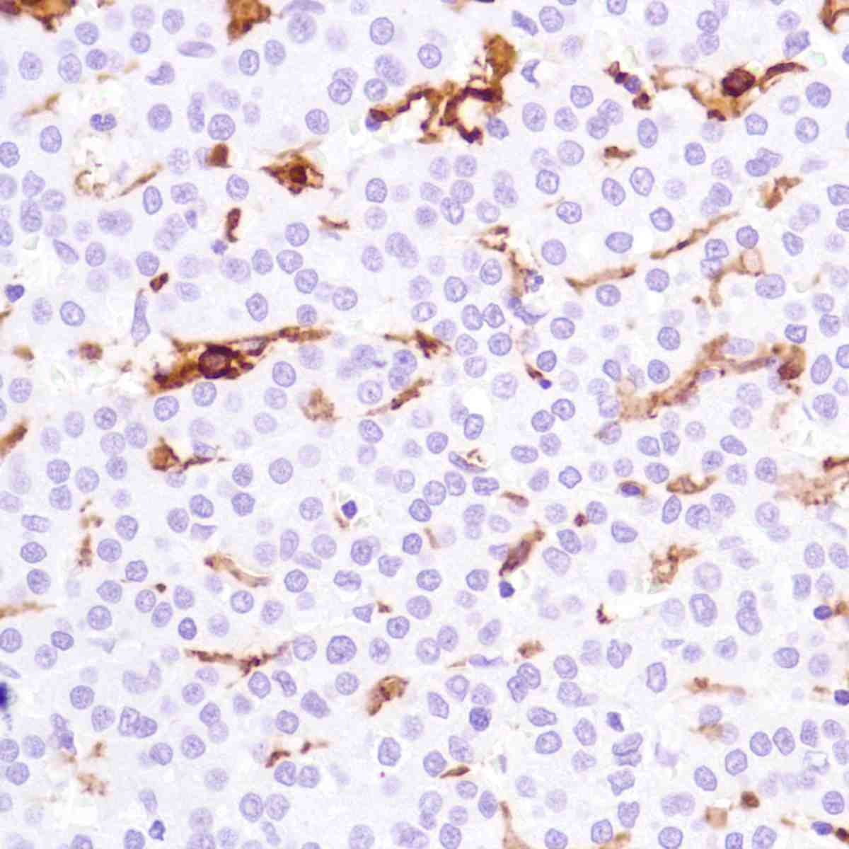 Human Liver Hepatocellular Carcinoma stained with anti-CD16a antibody