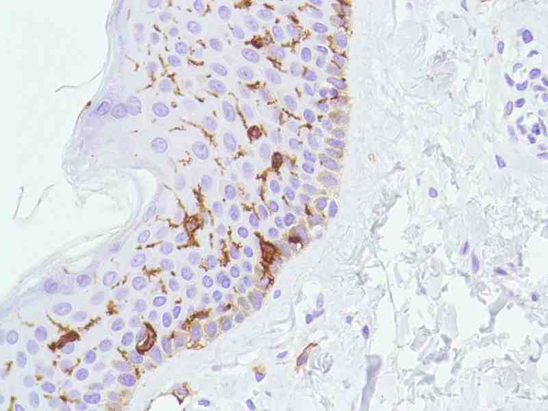 Human Skin stained with anti-CD1a antibody