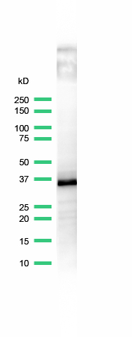 Western Blot analysis of anti-CD20 antibody