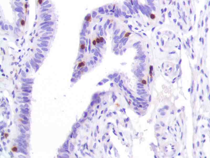 Human Fallopian Tube stained with anti-CD3 antibody
