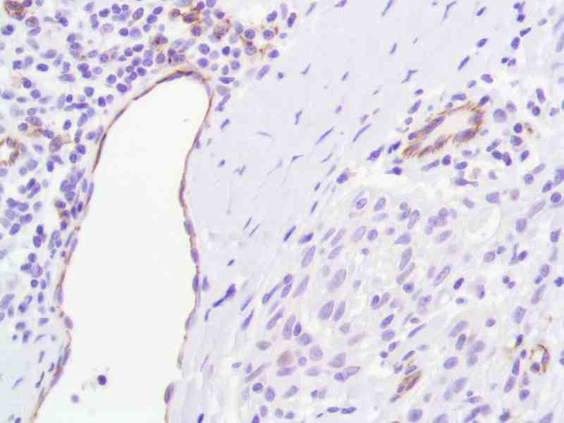 Human Skin Squamous Cell Carcinoma stained with anti-CD31 antibody