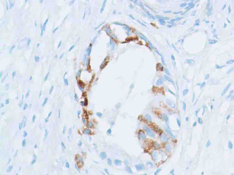 Human Prostate Adenocarcinoma stained with anti-Spink1 antibody