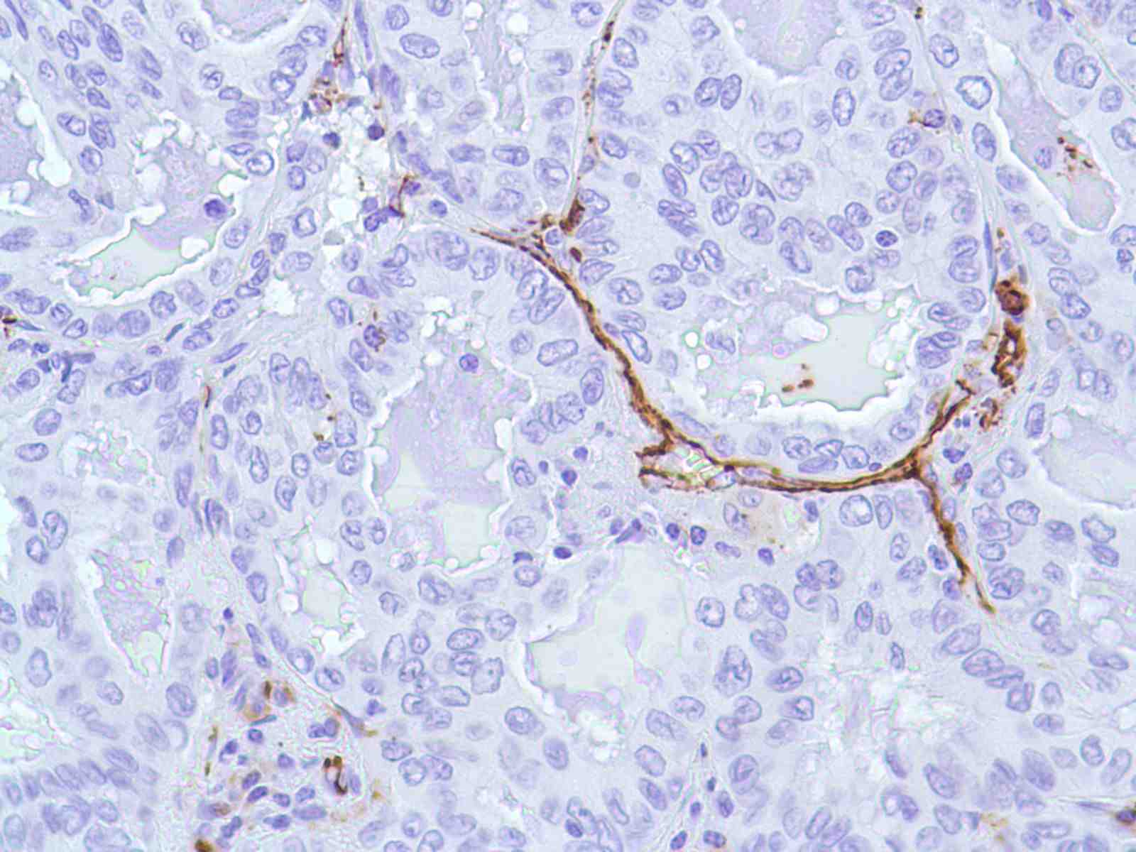 Human Lung Adenocarcinoma stained with anti-CD31 antibody