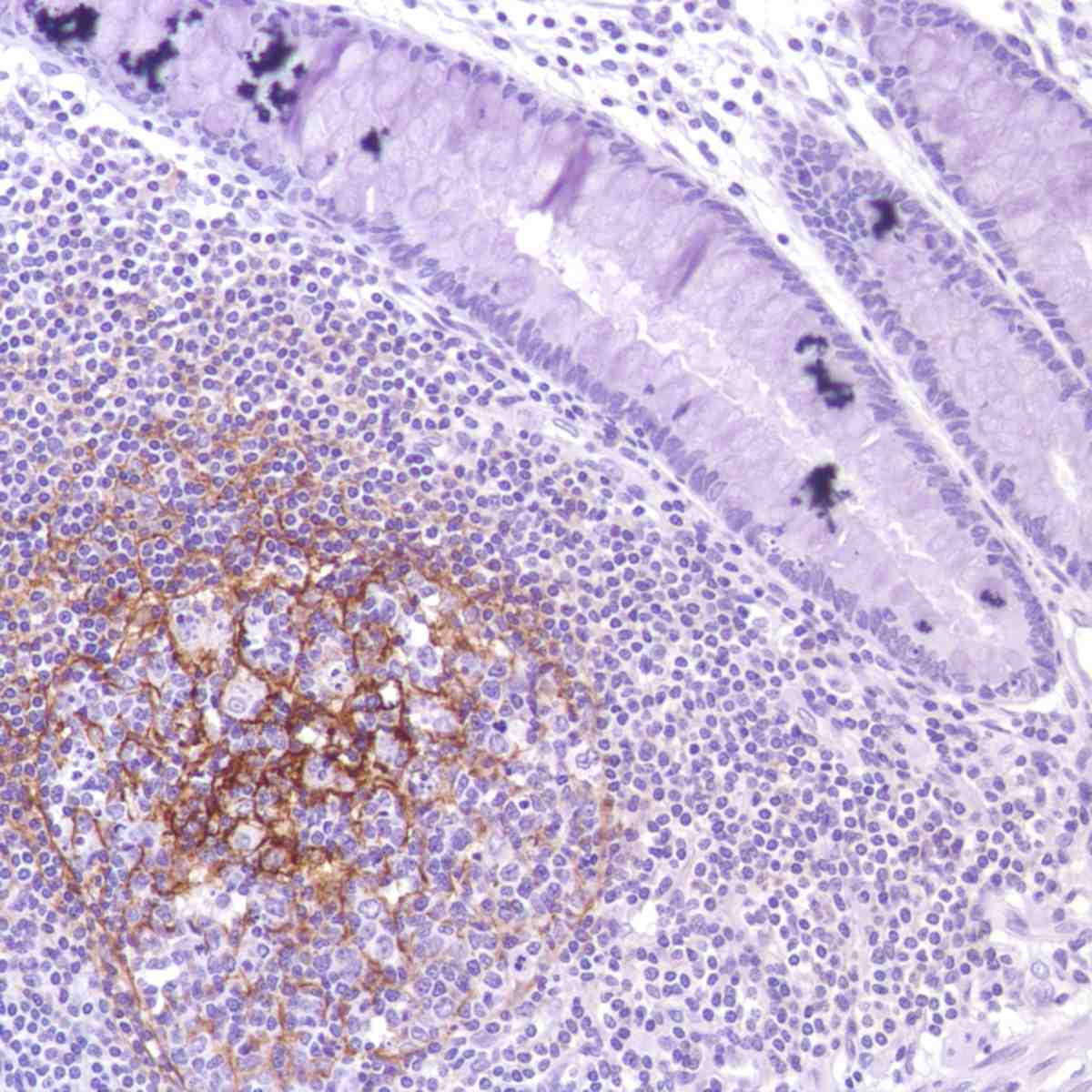 Human Colon stained with anti-CD35 antibody