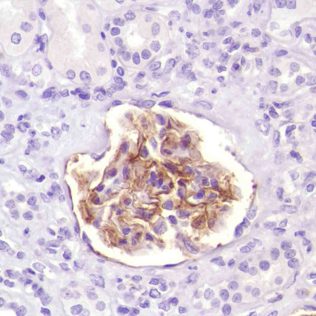 Human Kidney stained with anti-CD35 antibody