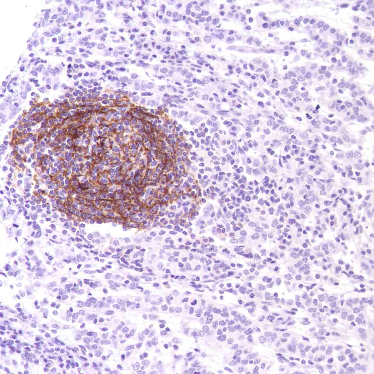 Human Stomach Adenocarcinoma stained with anti-CD35 antibody