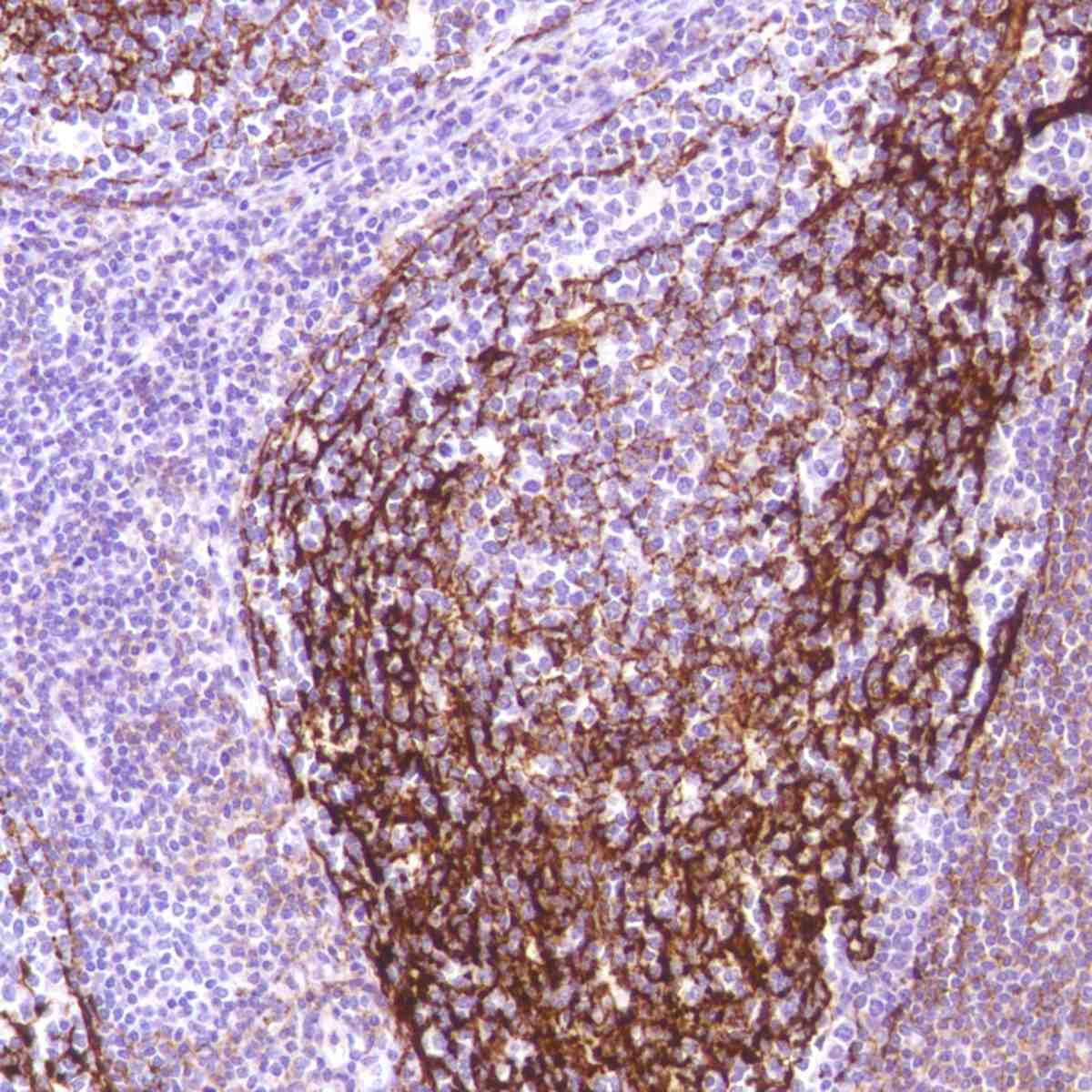 Human Tonsil stained with anti-CD35 antibody