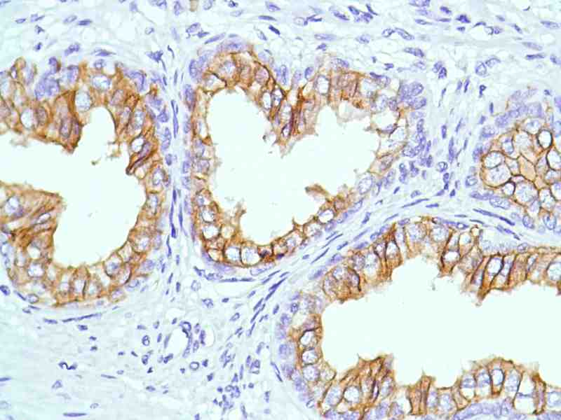 Human Prostate stained with anti-CD38 antibody