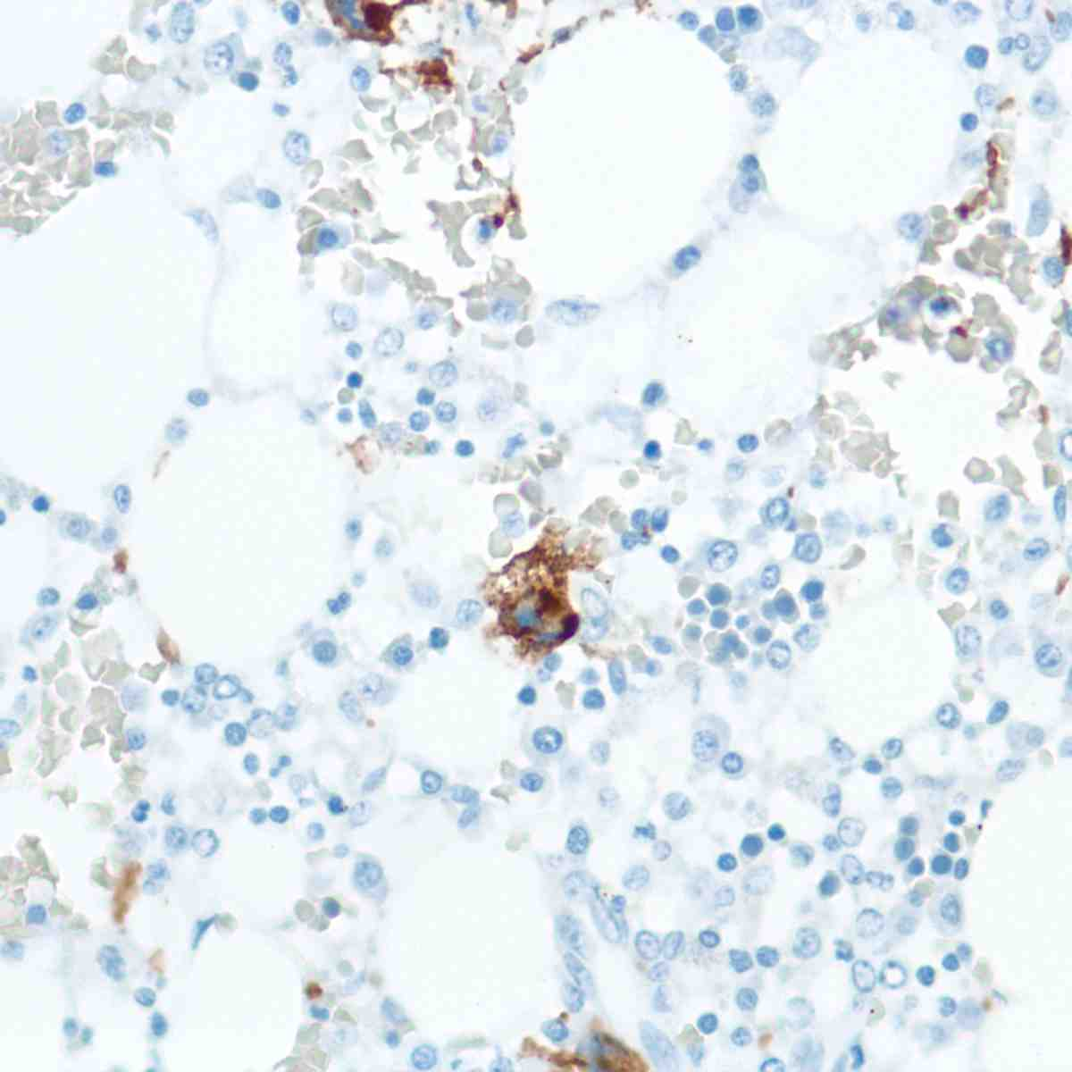 Human Bone Marrow stained with anti-CD42b antibody