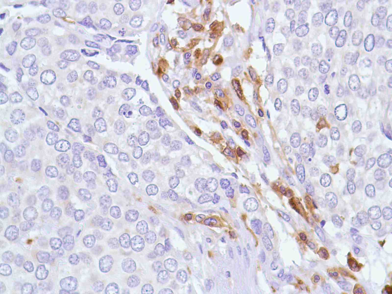 Human Bladder Transitional Cell Carcinoma stained with anti-CD43 antibody