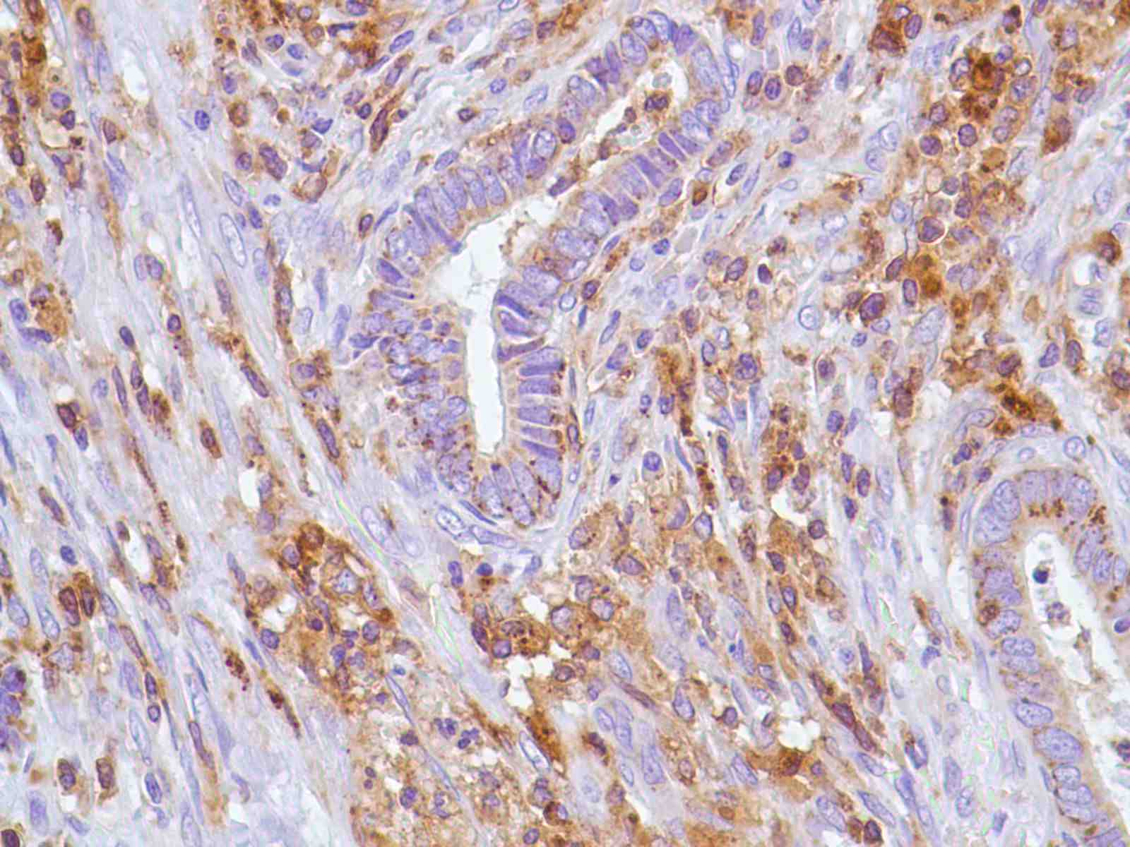 Human Colon Adenocarcinoma stained with anti-CD43 antibody