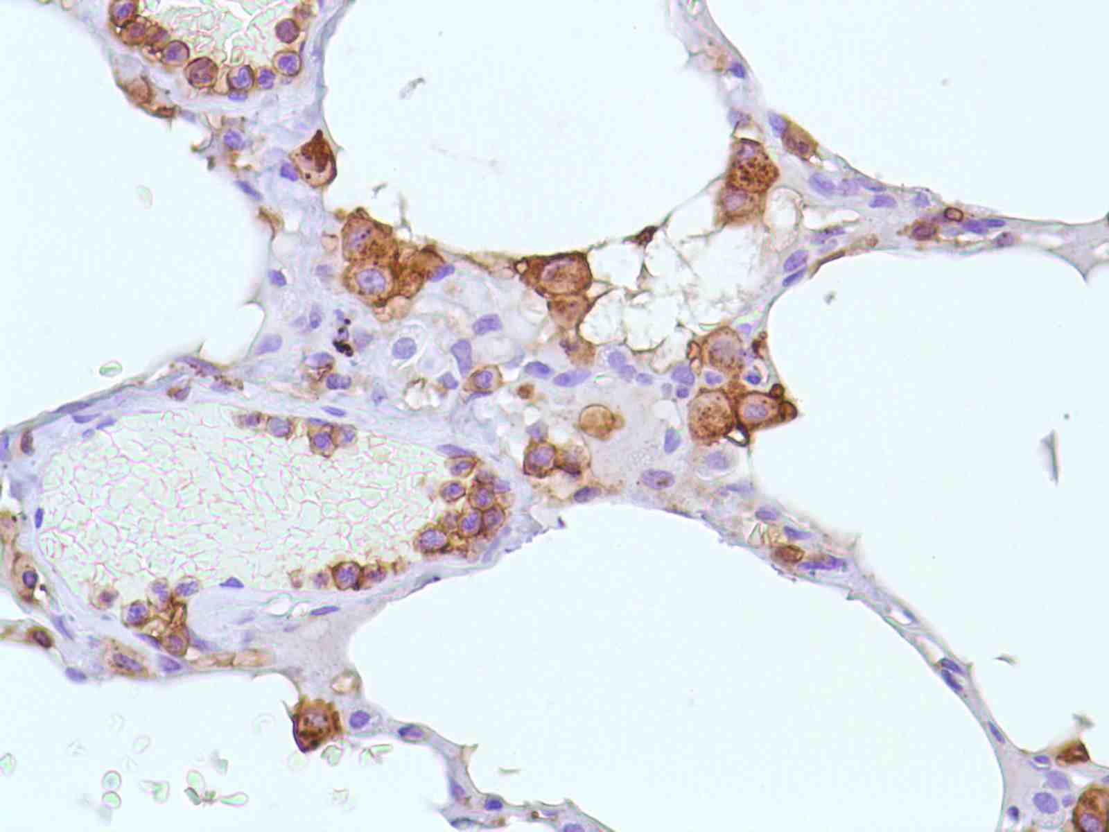Human Lung stained with anti-CD43 antibody