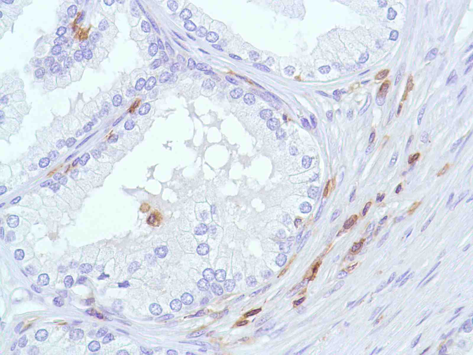 Human Prostate stained with anti-CD43 antibody