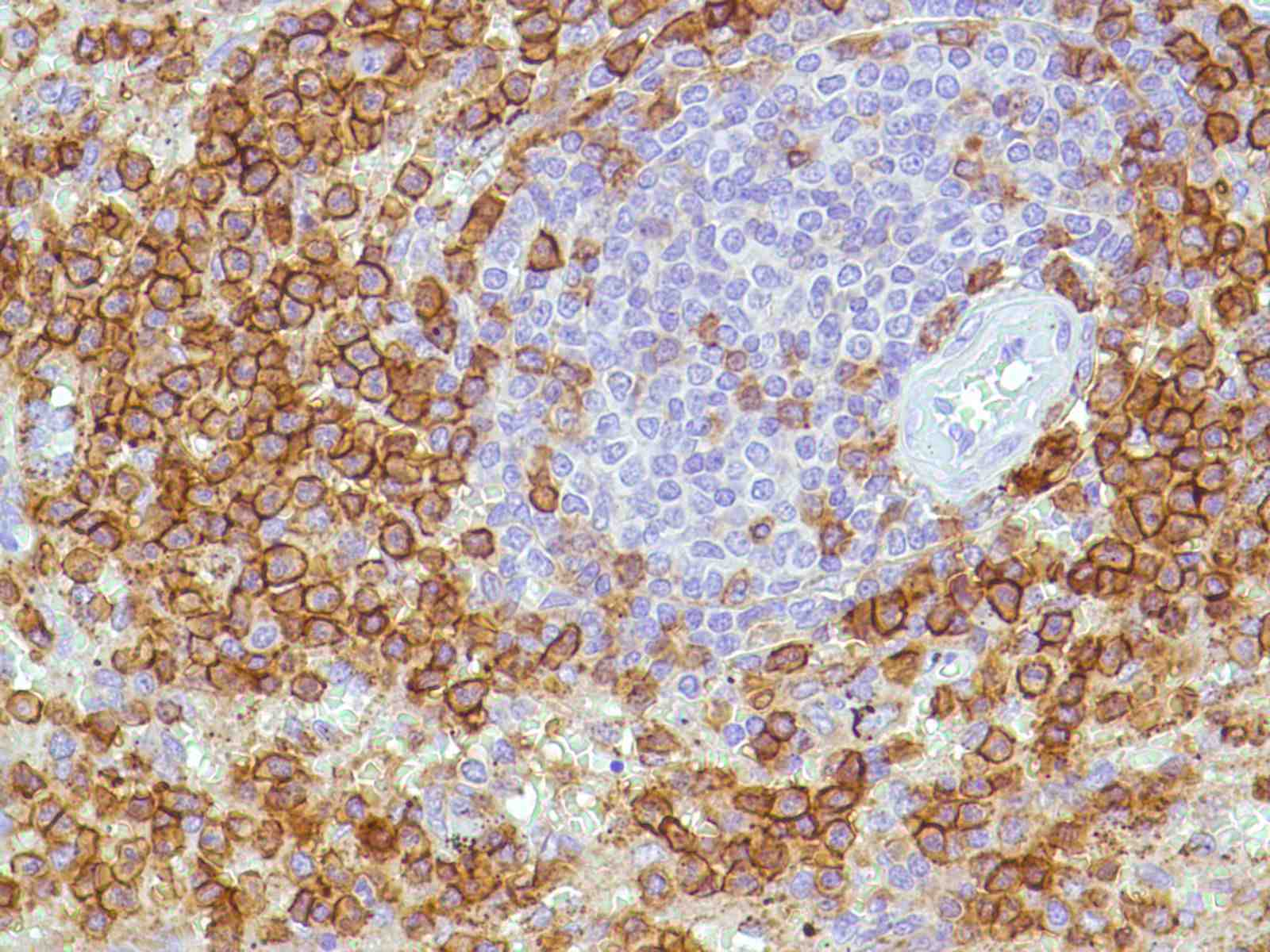 Human Spleen stained with anti-CD43 antibody