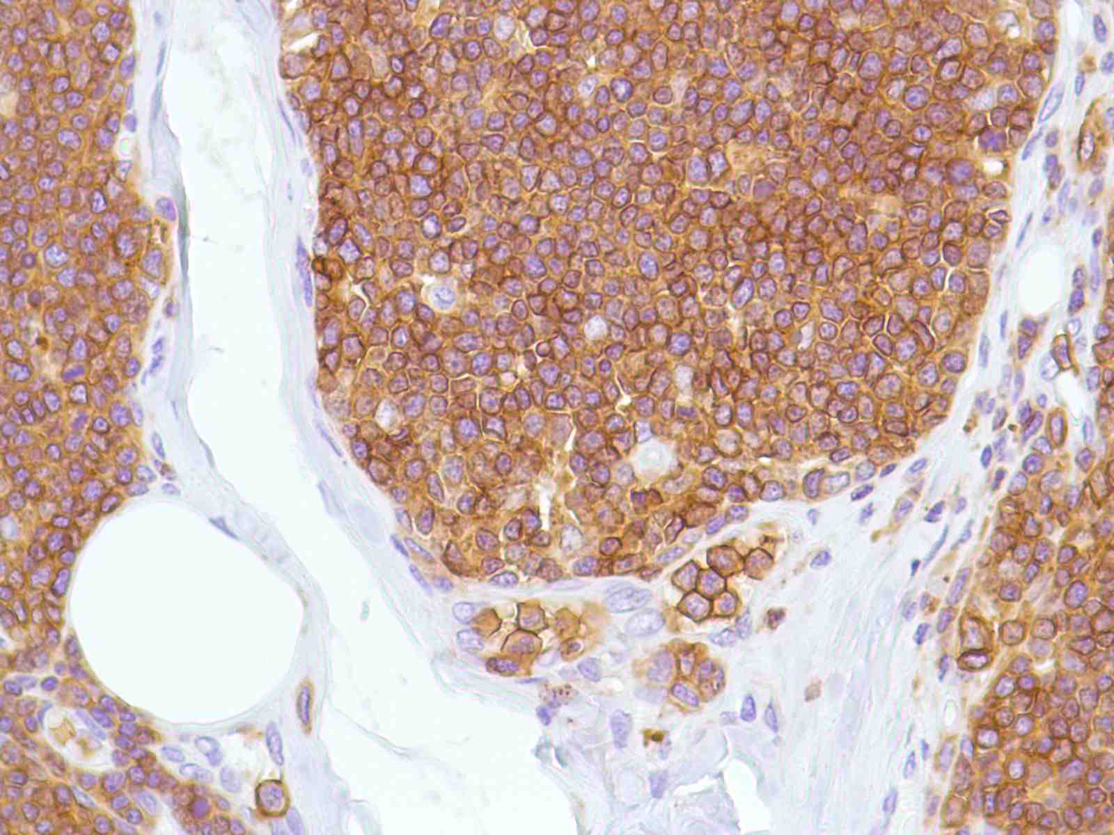 Human Thymus stained with anti-CD43 antibody