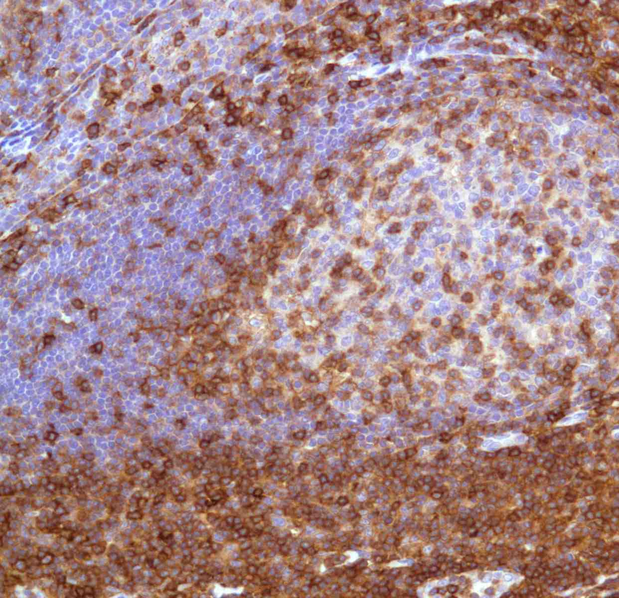 Human Tonsil stained with anti-CD43 antibody
