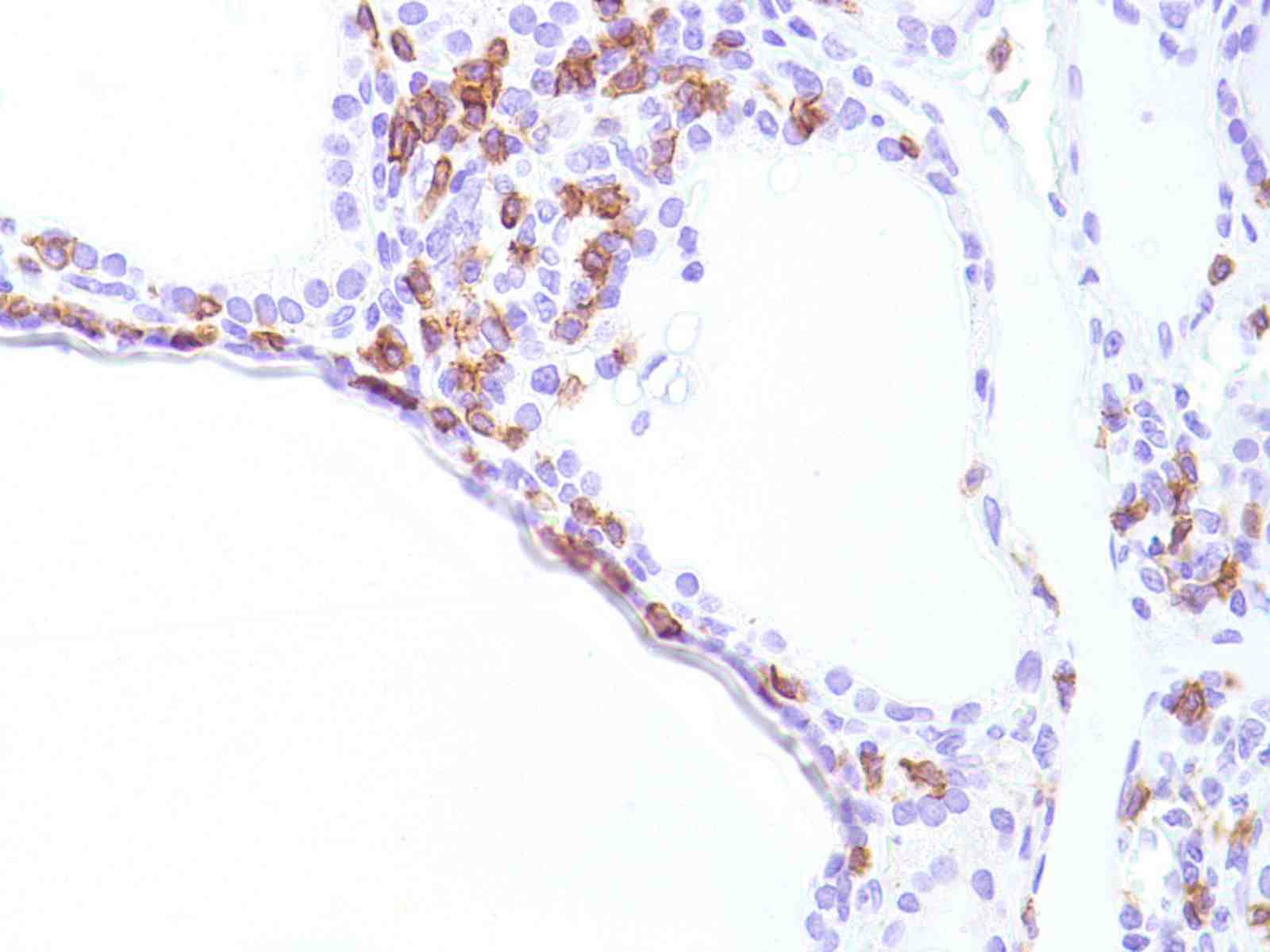 Human Thyroid stained with anti-CD8 antibody