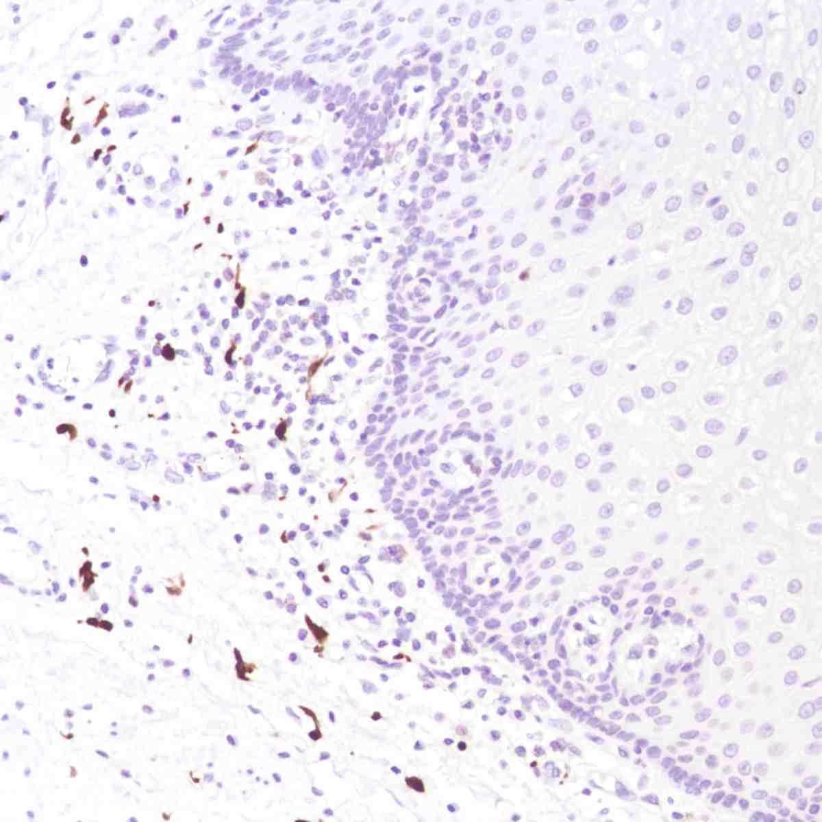 Human Esophagus stained with anti-FXIIIa antibody