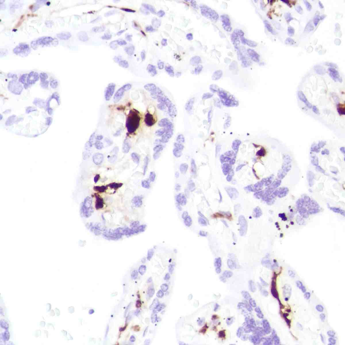 Human placenta stained with anti-coagulation factor XIIIa antibody
