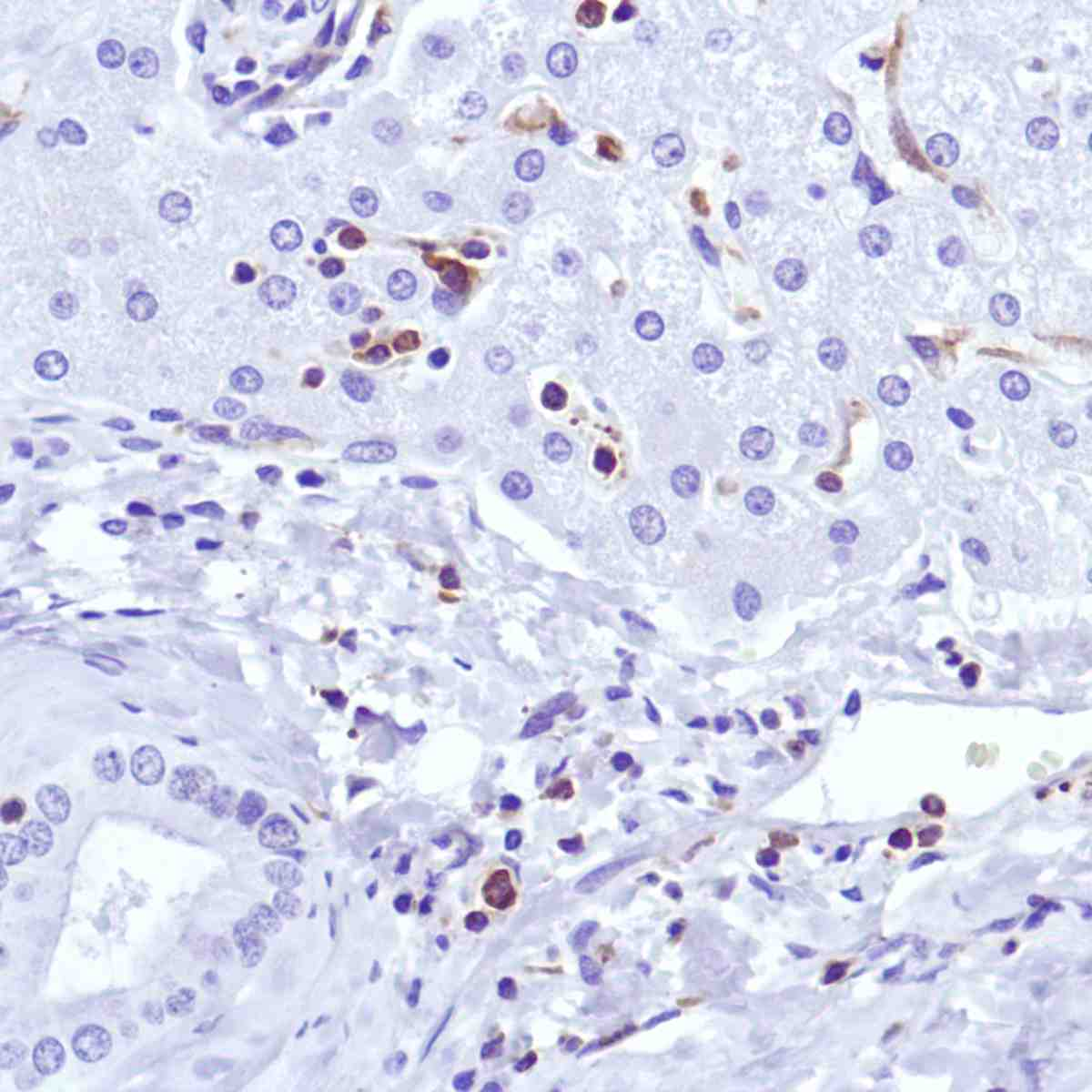 Human Liver stained with anti-CSF-1R antibody