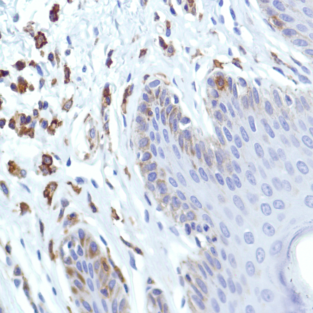 Human Skin stained with anti-CSF-1R antibody