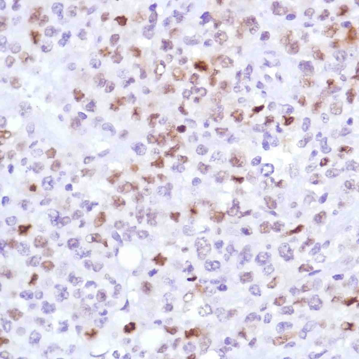 Human B-Cell Lymphoma stained with anti-Cyclin D3 antibody